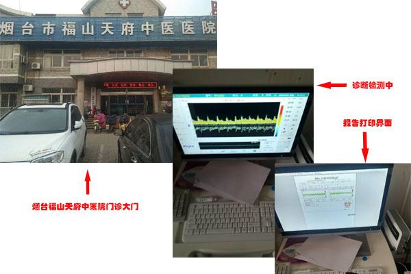 TCD仪器应用在山东烟台福山天府中医院